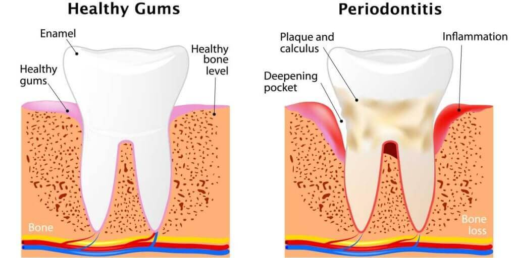 Periodontal Disease Stages
